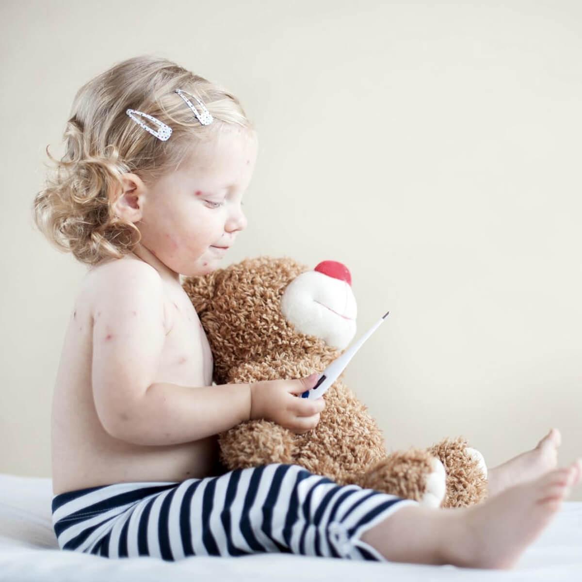 بیماری روزئولا، روزئولا در کودکان