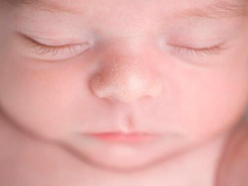 حساسیت پوستی میلیا در کودکان