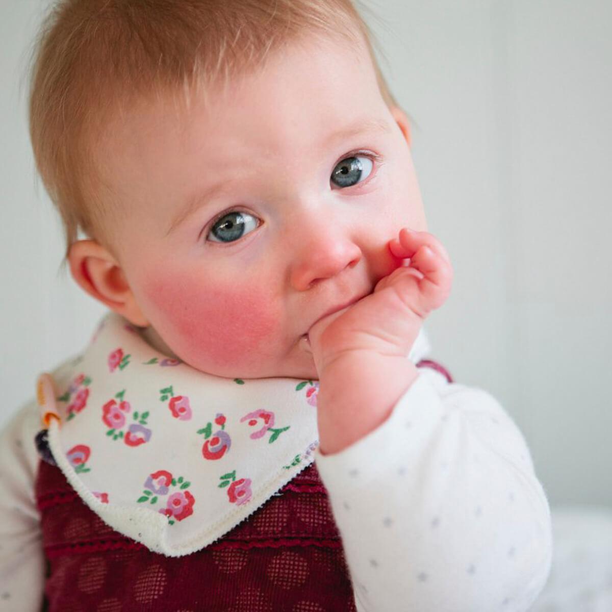 حساسیت پوستی کودکان و نوزادان