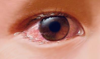 بیماری التهاب ملتحمه چشم در کودکان