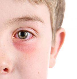 بیماری چشم صورتی ، التهاب ، یا ورم ملتحمه چشم در کودکان